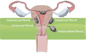 fibroids_395x255