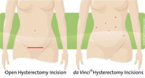 incision-comparison-hyst07-05